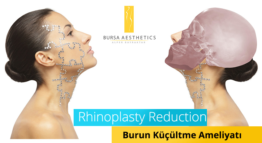 Burun Küçültme Rhinoplasty Reduction
